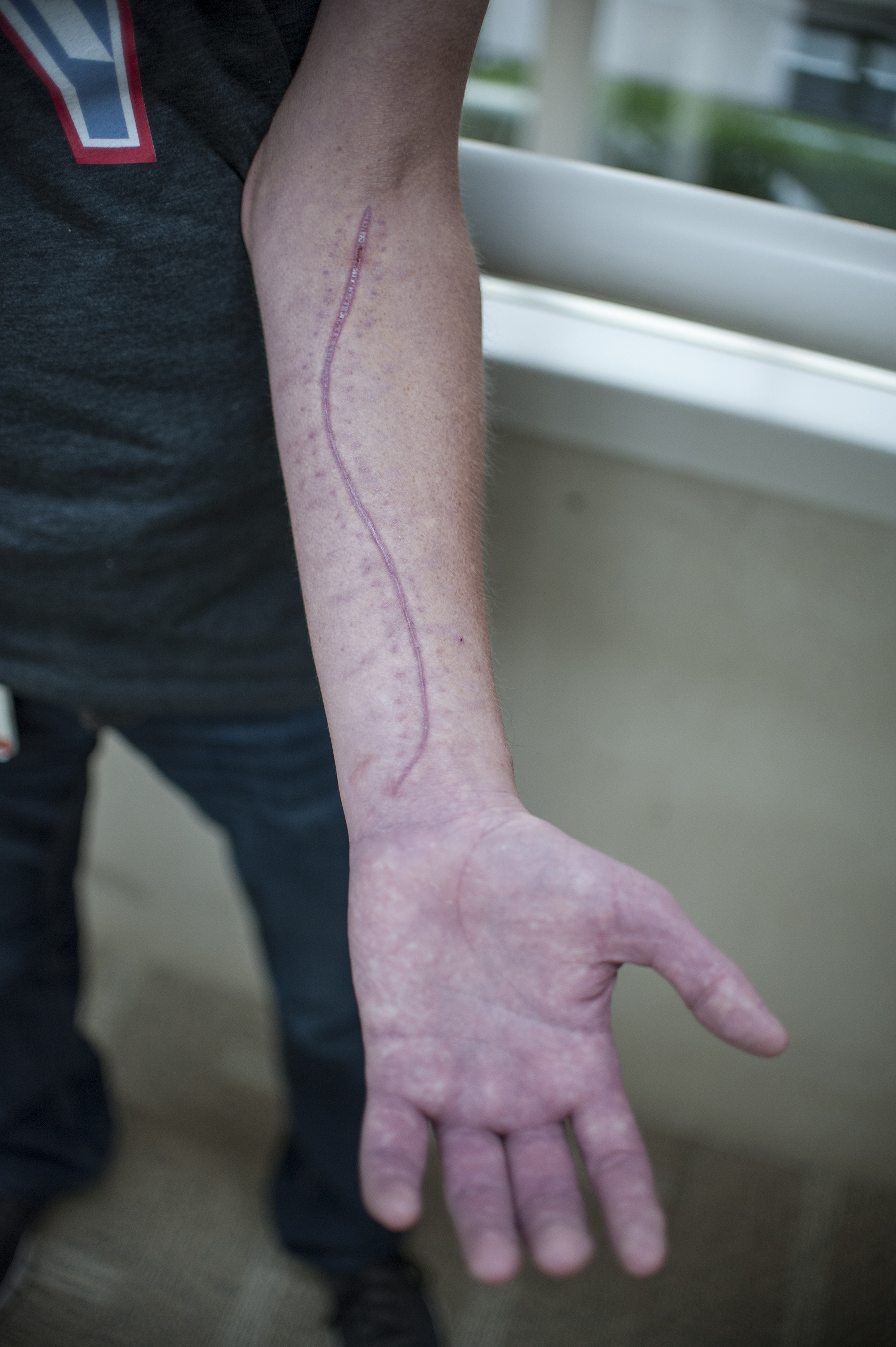 Atkins showing scar on arm